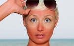 Kulit Belang Terbakar Sinar Matahari, Atasi dengan 10 Cara Ini!